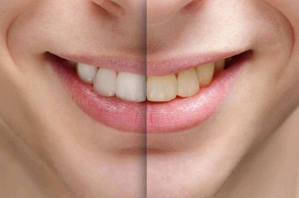 Nguyên Nhân Nào Dẫn Đến Răng Bị Ngã Màu? 1