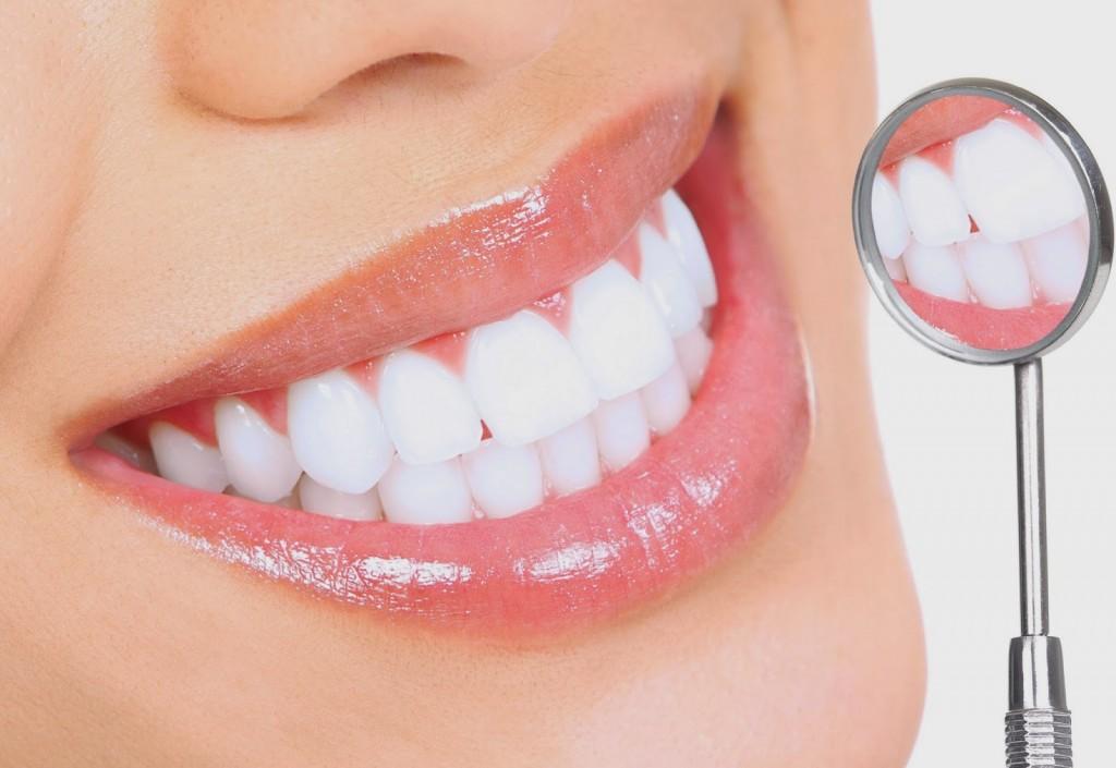 Có Nên Tẩy Trắng Răng? 1