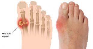 Gout là gì? Dấu Hiệu Nào Để Nhận Biết Được Căn Bệnh Này 39