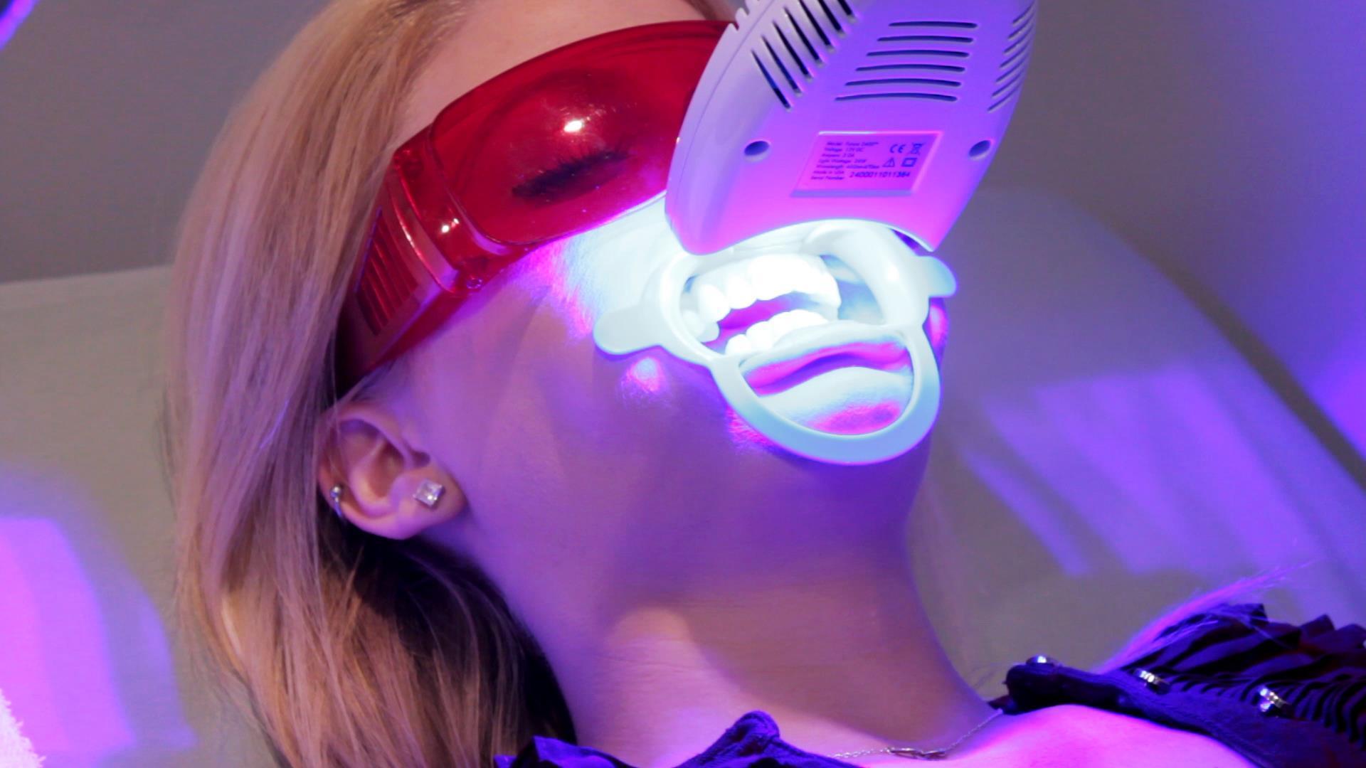 Có Nên Tẩy Trắng Răng? 3