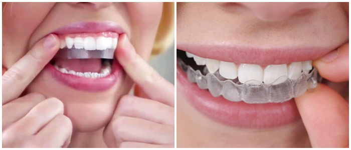 Có Nên Tẩy Trắng Răng? 2
