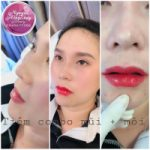 Top 5 Địa chỉ tiêm filler – botox uy tín và chất lượng nhất Đà Nẵng