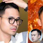 Top 5 địa chỉ cấy tóc uy tín nhất tại Hà Nội