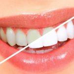 Top 5 địa chỉ tẩy trắng răng tốt và hiệu quả nhất tại Tp Vinh
