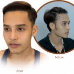 Top 7 địa chỉ cấy tóc uy tín nhất tại Tp HCM