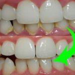 Top 8 địa chỉ lấy cao răng uy tín hàng đầu tại Tp HCM