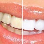 Top 8 địa chỉ tẩy trắng răng hiệu quả, an toàn nhất tại Tp HCM
