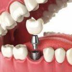 Top 8 địa chỉ trồng răng implant tốt nhất tại Đà Nẵng