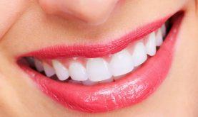 Top 8 Sản phẩm giúp tẩy trắng răng, cho bạn nụ cười trắng sáng tốt nhất