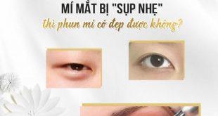 Hướng dẫn khắc phục mí mắt bị sụp tại nhà 21