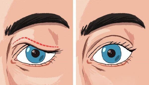 Hướng dẫn khắc phục mí mắt bị sụp tại nhà 1
